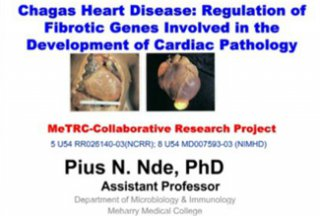 RCMI Spotlight Presents – Meharry Medical College – Molecular mechanisms of cardiac fibrosis induced by Trypanosoma cruzi